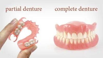 complete-partial-dentures-400x227-608w