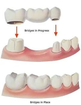 dental-bridge-608w